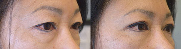 Middle age Asian female, underwent Asian upper blepharoplasty with crease formation. Before and 2 months after Asian blepharoplasty photos are shown.