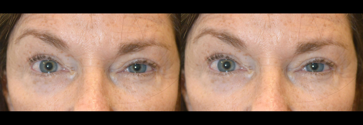 Middle age woman, with both eyelid and eyebrow asymmetry, underwent asymmetric botox injection to create more symmetric eyes.