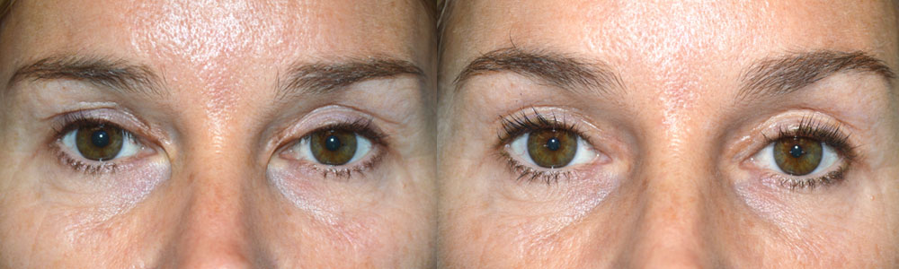 This patient suffered from severe eyelid scarring in the medial canthus from previous blepharoplasty with canthal web. She underwent revision eyelid scar surgery with epicanthoplasty. Preoperative and 3 months postoperative photos are shown.
