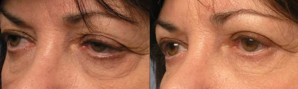 Before (left) Preop canthoplasty, Quad-blepharoplasty, ptsois surgery and 3 months after (right photo) postop with more almond shape eyes.