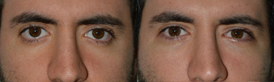 Young male with congenital rounded eyes and lower eyelid retraction with scleral show who underwent lower eyelid retraction surgery with internal Alloderm graft and canthoplasty, resulting in elevation of the lower eyelids and creating more of an almond eye shape. He also had tear trough silicone implants placed.