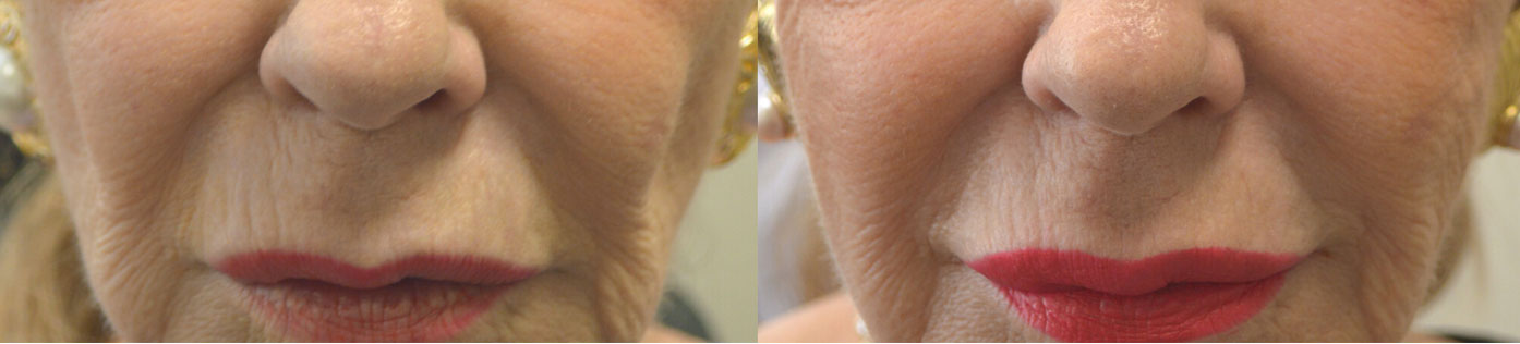 78 year old female with facial aging and sunken cheeks, received hyaluronic acid gel filler injection in her cheeks, to give more youthful natural facial appearance.