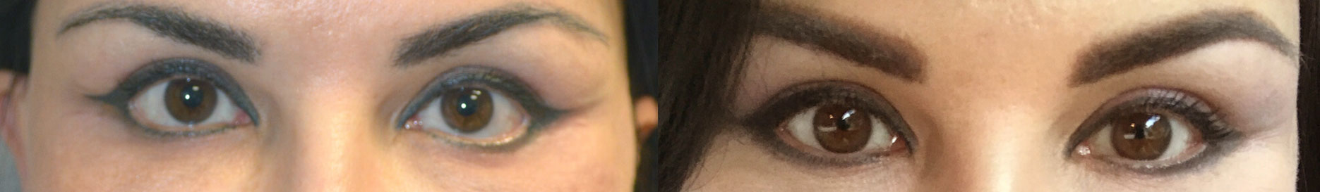 47-year-old Russian female, with post-blepharoplasty lower eyelid retraction and sclera show and rounded eyes, underwent revision eyelid surgery with lower eyelid retraction surgery (internal eyelid lift, alloderm spacer graft, canthoplasty) to restore almond eye shape. Before and 3 months after lower eyelid retraction repair photos are shown.