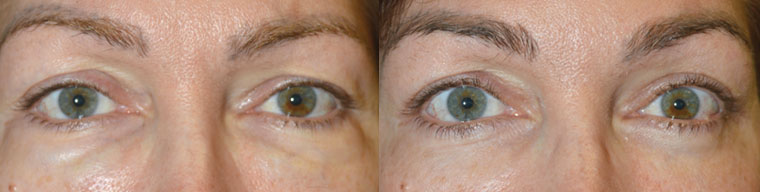 """49-year-old female, who had a history of 3 previous cycles of under eye hyaluronic acid gel (Juvederm and Restylane) injections to fill """"hollow"""" under eye area (tear trough), followed by hyaluronidase injection to get rid of """"excess filler"""", resulting in puffy, unnatural under eyes area. After examination, it was determined she had more under eye fat prolapse with some residual filler. She underwent transconjunctival lower blepharoplasty (scar-less, stitch-less incision inside the lower eyelid) with fat repositioning. This revision cosmetic procedure was done under local anesthesia in our Beverly Hills office. Note the improved, smoother under eye (lower eyelid) appearance after surgery. Preop and 3 months postoperative photographs are shown."""