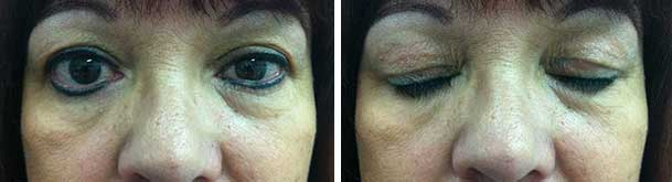 Photos, with eye open and closed, showing that the left upper eyelid gold weight is hidden nicely.