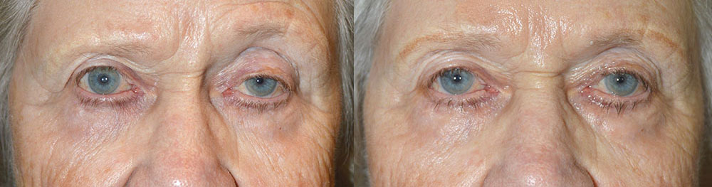 Before (left) 87 year old female, with persistent left upper eyelid ptosis after previous droopy eyelid surgery. After (right) 3 months after revision left upper eyelid ptosis surgery.