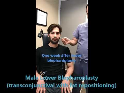 Male Lower Blepharoplasty Surgery
