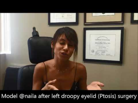 Naila – Patient Testimonial for Ptosis (Droop Lower Eyelid) Corrective Surgery