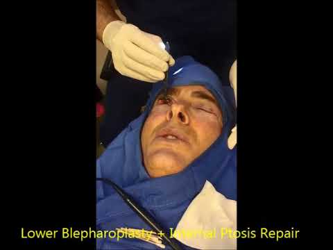 Cosmetic Lower Blepharoplasty on a Physician