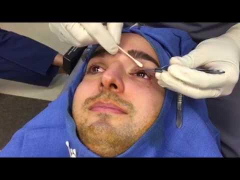 Eyelid Ptosis – Droopy Eyelid Surgery – Hidden Incision