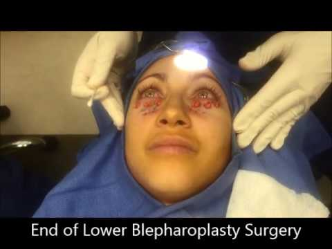 Lower Blepharoplasty to Reduce Dark Circles & Remove Eyelid Bags – Izabelle Patient Testimonial