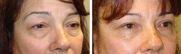 Before (left) and 3-months after (right) ptosis surgery, blepharoplasty.
