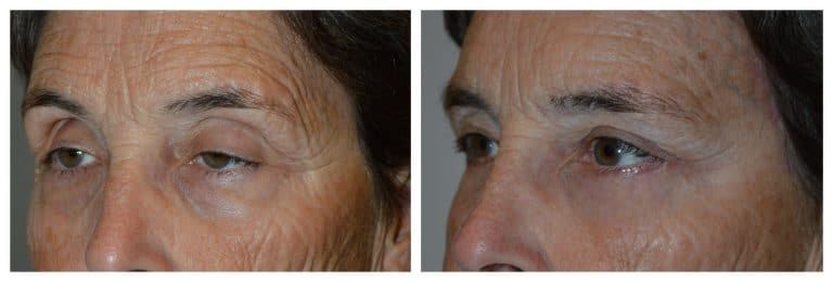 Before (left) and 3-months after (right) upper and lower blepharoplasty, ptosis (droopy eyelid) surgery, lateral brow lift (pretrichial approach).