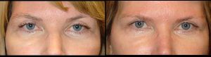 Before (left) and 3-months after (right) bilateral upper ptosis (droopy eyelid) surgery.