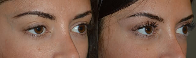 Before (left) and 3 months after (right) revisional right upper eye fold ptosis treatment.