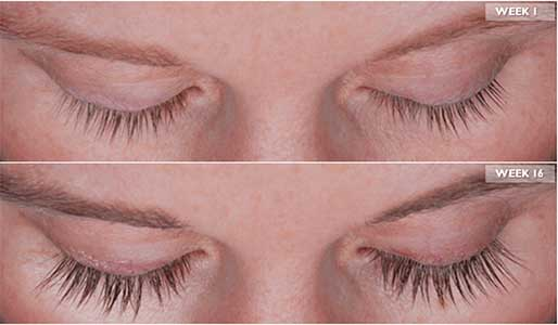 Los Angeles Eyelash Treatment