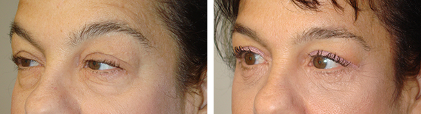 Droopy Eyelid Treatment in LA