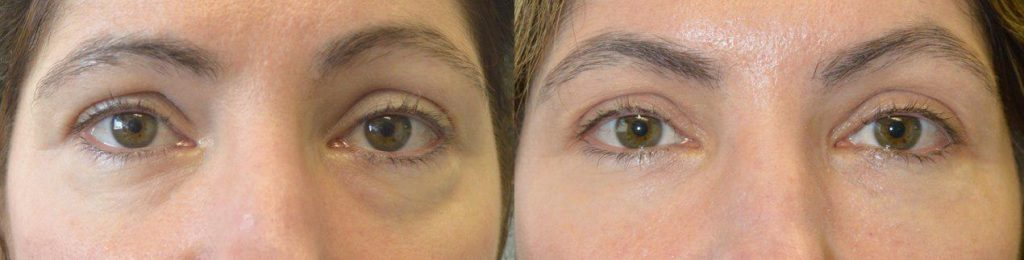 lower eyelid injectable fillers