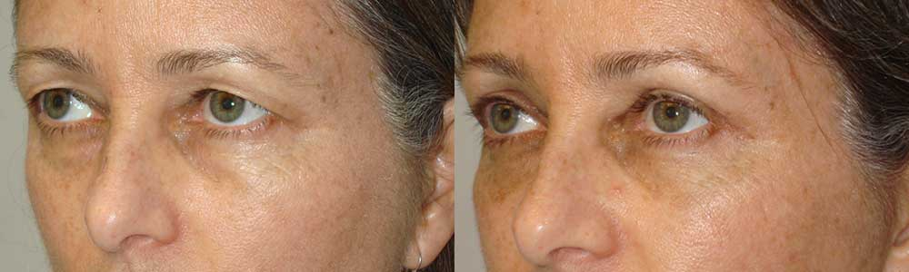 Before (left) and 3 months (after) cosmetic upper blepharoplasty (skin removal) and lateral brow lift (outer brow lifted using temple hairline incision).