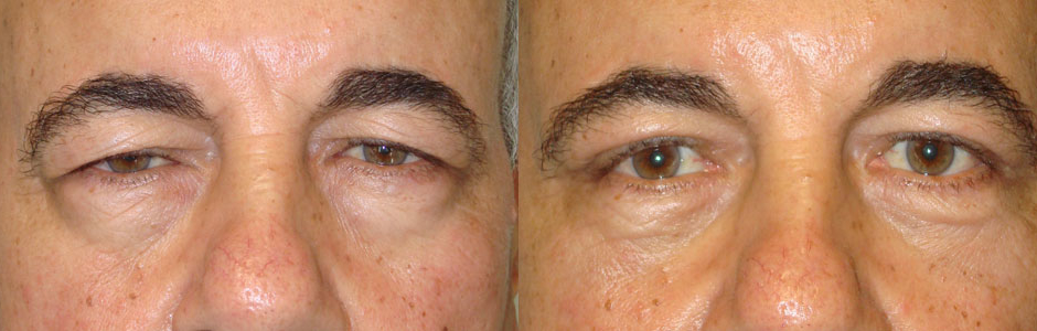 Before (left) and 3 months after (right) upper eyelid ptosis repair to raise droopy upper eyelids)and male upper blepharoplasty (conservative upper eyelid skin removal).