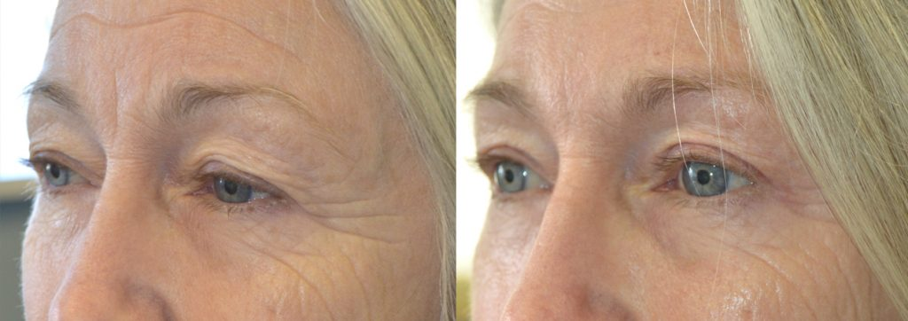 Before (left) and after (right) 68-year-old female, with saggy upper eyelids and brows, underwent cosmetic upper blepharoplasty and lateral pretrichial brow lift.