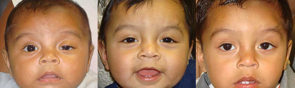Congenital Pediatric Ptosis Los Angeles
