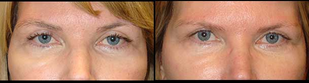 Droopy Eyelid Treatmetns in Los Angeles