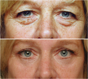 Skin Resurfacing And Blepharoplasty For Optimal Anti Aging Results