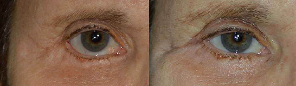 Before (left) Middle age woman with right lower eyelid retraction after previous lower blepharoplasty, now needing revision cosmetic surgery. After (right) 4 months after right lower eyelid retraction surgery with internal alloderm graft, midface lift, canthoplasty, giving more natural almond shape eye appearance. (later she would also benefit from ptosis surgery and brow lift).