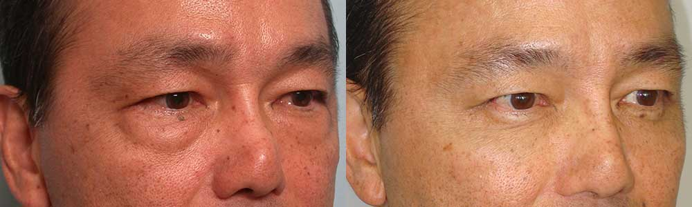 Male Asian Before and After Blepharoplasty