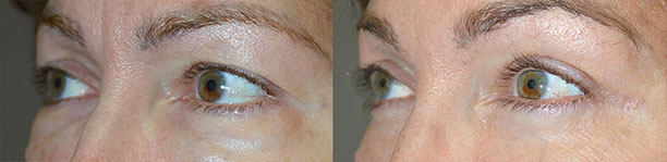 Revisional Eyelid Surgery in Los Angeles