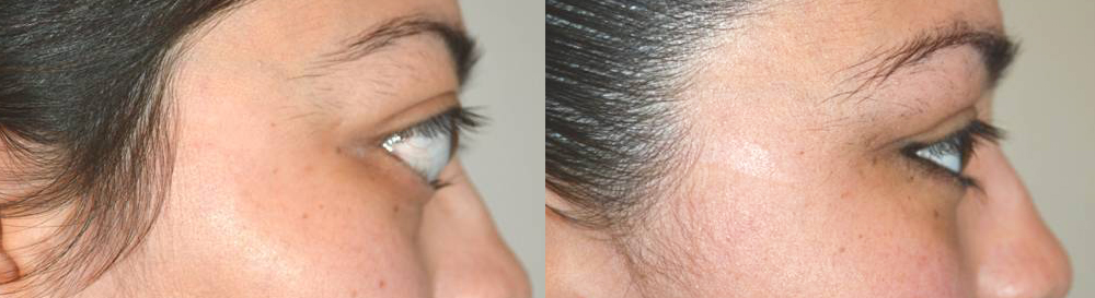 bulgy-eye-treatment-by-los-angeles-surgeon