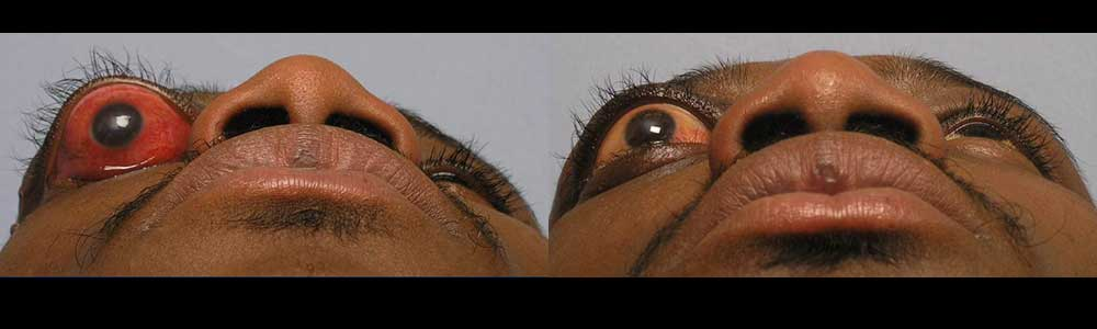 bulgy-eye-tumor-reconstruction-by-los-angeles-surgeons