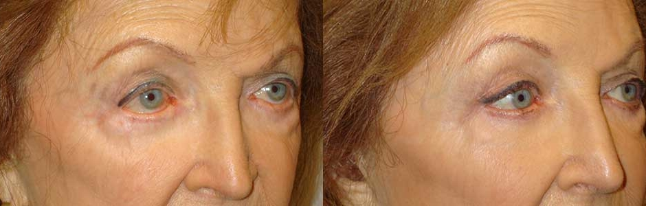 Lower Eyelid Corner Slant Surgery in LA