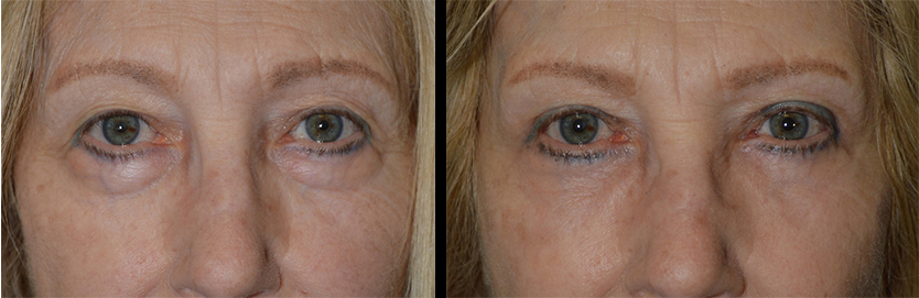 Beverly Hills Under Eye Bags Treatment