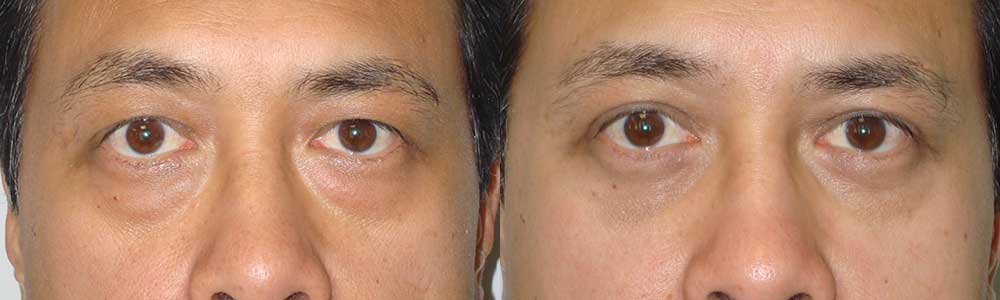 Male Asian Upper and Lower Blepharoplasty in LA