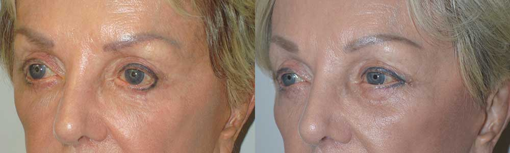 Lower Eyelid Tightening in Los Angeles