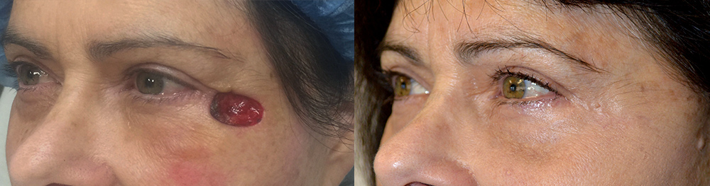 57 year old female, with right eyelid/temple skin cancer (basal cell carcinoma) Mohs defect underwent reconstructive eyelid surgery. Before and 3 months postoperative photos are shown.