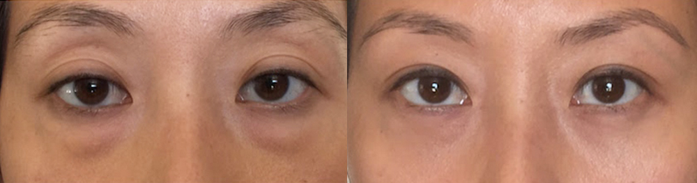 Before and After Eyelid Surgery in LA