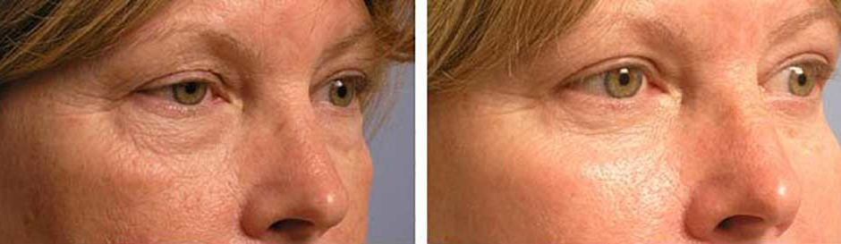 50 year old female, complained of extra loose, wrinkled skin around eyes. She underwent cosmetic upper blepharoplasty (skin removed from upper eyelids to correct hooded eyes), lower blepharoplasty (transconjunctival approach with fat redraping to correct under eye bags), and chemical peel (to tighten and smooth our find wrinkles around eyes), under local anesthesia in the office. Note natural results with patient's eyes looking healthier, younger, and more rested. Before and 3 months after eye plastic surgery photos are shown.