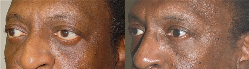 Middle age man, with thyroid eye disease (Graves disease), with protruding eyes and lower eyelid retraction with sclera show and lagophthalmos (unable to fully close his eyes), underwent orbital decompression surgery (to push the eyeball back) followed later by lower eyelid retraction correction (internal approach, without graft) and canthoplasty to raise the lower eyelids in more normal location.