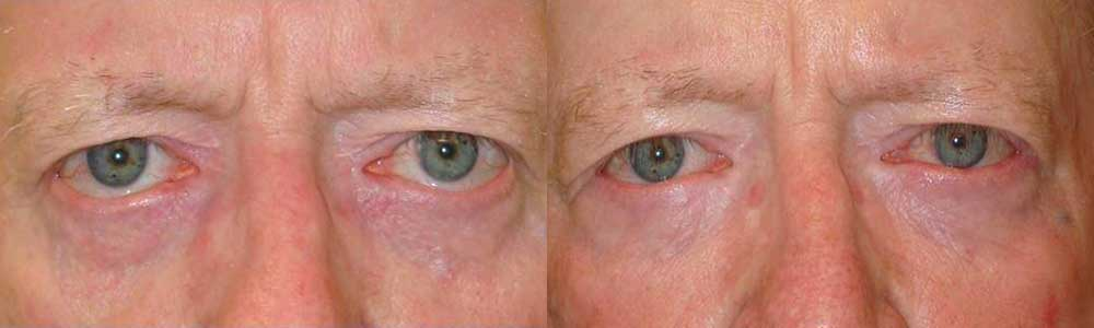 Lower Eyelid Retraction Surgery