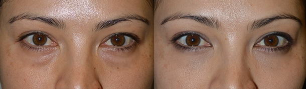 Eyelid Bag Reduction in Los Angeles
