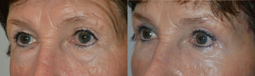 Eyelid Bag Treatments in Los Angeles