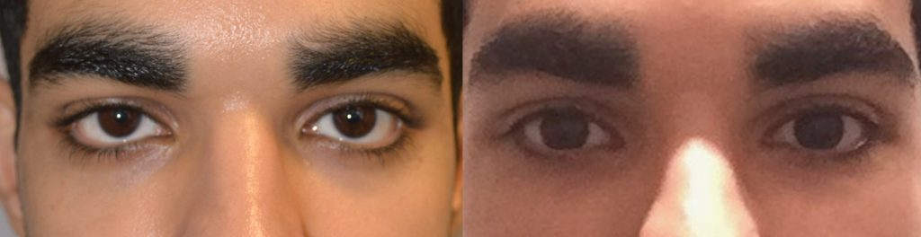 Young male, with inherited lower eyelid retraction and sclera show, underwent Almond Eye Surgery (lower eyelid retraction surgery with alloderm spacer graft, canthoplasty, tear trough implant) to give more attractive almond shaped eyes. Before and 3 months after surgery photos are shown.