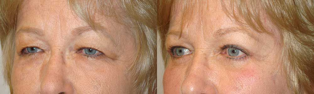Eye Bags Removal Surgery Procedure