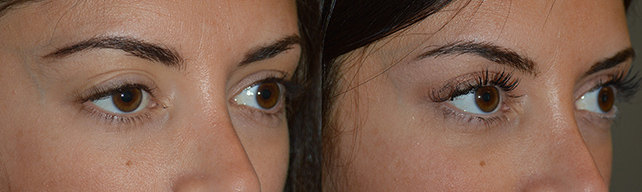 Patient with History of Prior Ptosis Surgery in LA