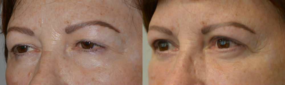 Cosmetic Eyelid Lift Operation Procedure