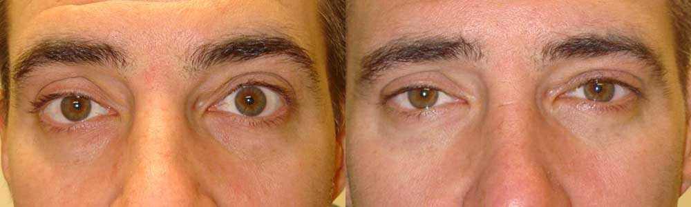 Young man, complained of eye shape/size asymmetry with left eye bigger, which is secondary to left upper eyelid retraction (eyelid too high). He underwent left upper eyelid retraction surgery (to lower the left upper eyelid), under local anesthesia. Before (left) and 3 months after (right) photos are shown. Note improve eye appearance and symmetry.