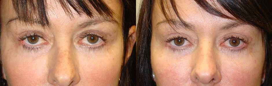 Cat Eye Treatment by Los Angeles Oculoplastic Surgeon